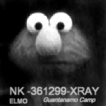 Elmo X-ray image