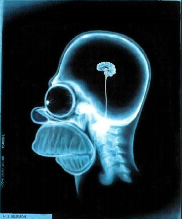Homer Simpson X-ray image