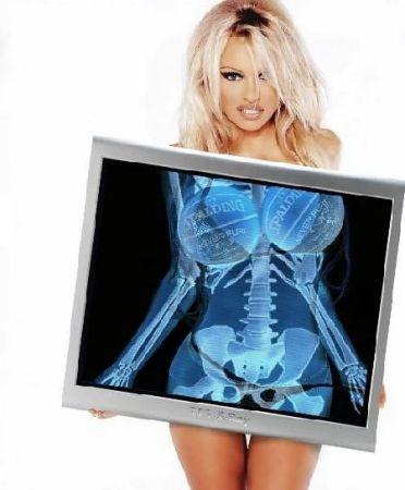 Pamela Anderson X-ray image