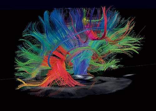 Brain in MRI